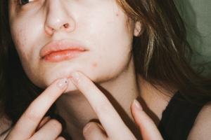 Una ragazza preme con i due indici un brufolo sul mento