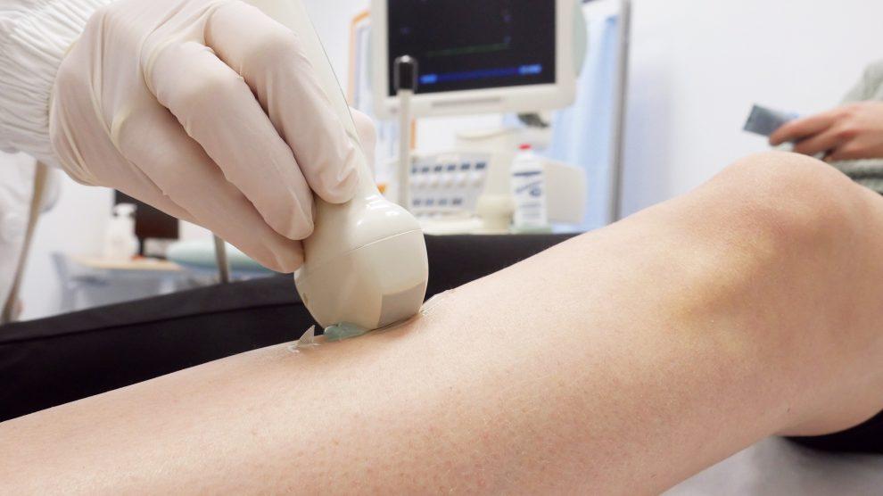 Un medico angiologo esegue un ecocolordoppler sugli arti inferiori di un paziente, disteso su un lettino all'interno di un centro medico