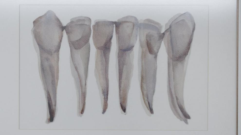 Un quadro che raffigura dei denti