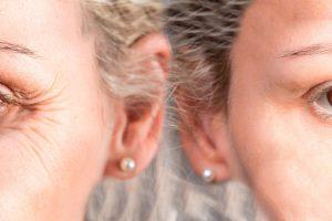 Il prima e il dopo di un trattamento di medicina estetica per la rimozione delle rughe intorno agli occhi
